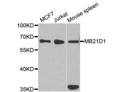 Anti-MB21D1 antibody