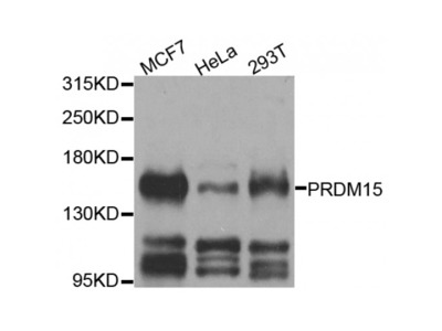 Anti-PRDM15 antibody