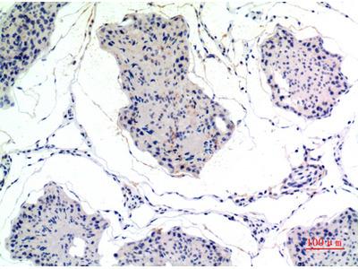 Anti-Thrombospondin 2 antibody (STJ97651)
