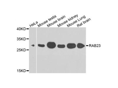 Anti-RAB23 antibody