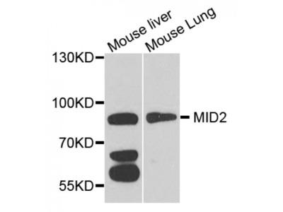 Anti-MID2 antibody