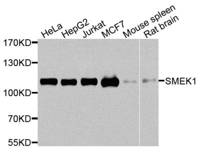 Anti-SMEK1 antibody (STJ110798)