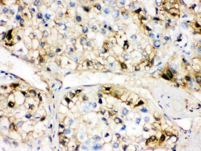 Anti-AHSG Picoband Antibody