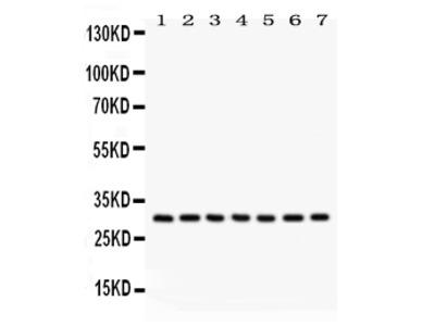 Anti-NQO1 Picoband Antibody