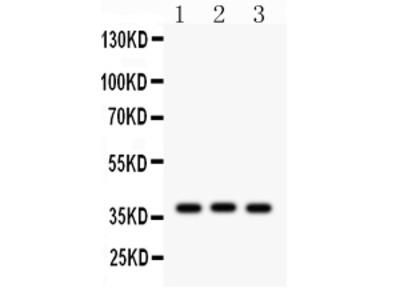 Anti-CTGF Antibody Picoband