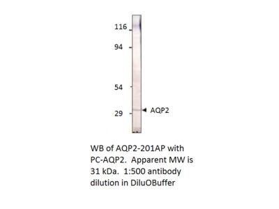 Aquaporin 2 Positive Control