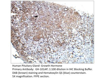 Growth Hormone Antibody