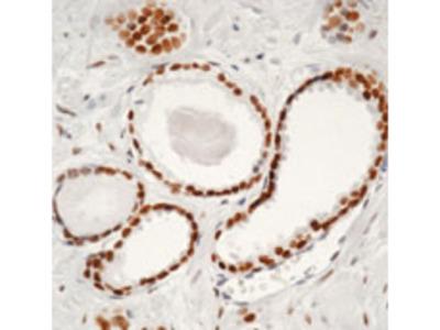 AR / Androgen Receptor Monoclonal Antibody