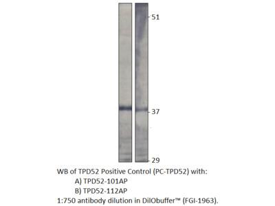 Prlz / TPD52 Antibody