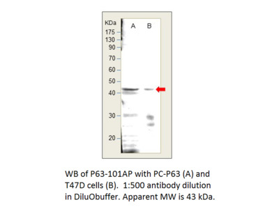 p63 Antibody
