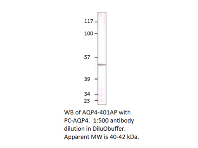 Aquaporin 4 Positive Control