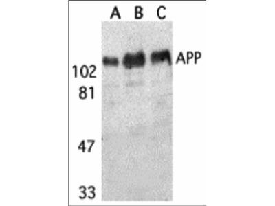 APP Antibody