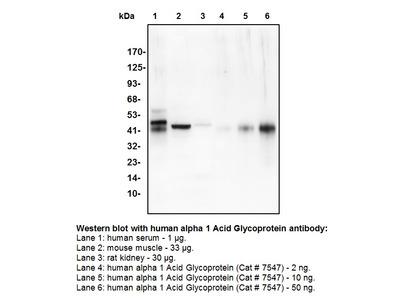 Alpha 1 Acid Glycoprotein Antibody