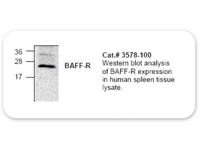 BAFF-R Polyclonal Antibody