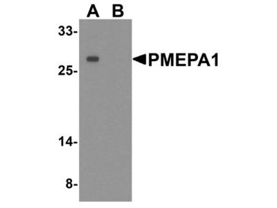 TMEPAI / PMEPA1 Antibody