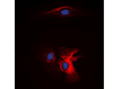 Complement C1QB Antibody
