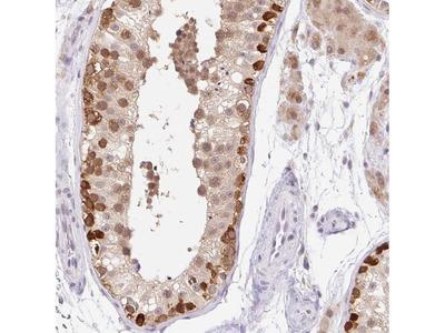 Anti-SRSF10 Antibody