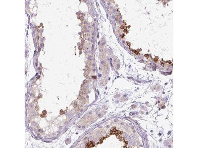 Anti-TBC1D3L Antibody