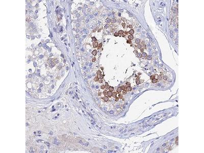 Anti-PTTG1 Antibody