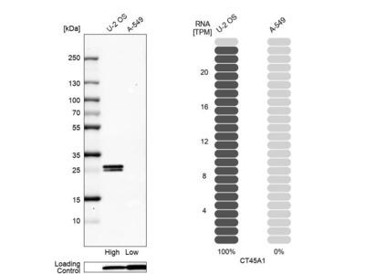 Anti-CT45A1 Antibody