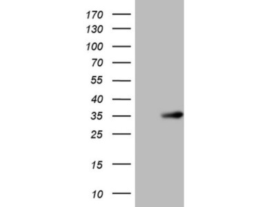 SHP / NR0B2 / Nuclear Receptor SHP Antibody (OTI7B5)
