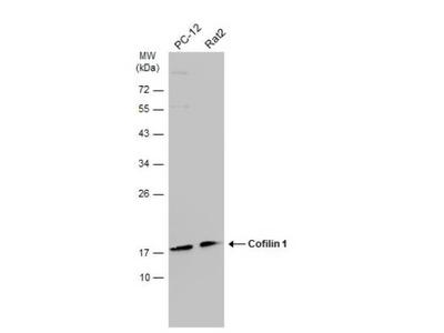 Mouse Monoclonal Cofilin Antibody