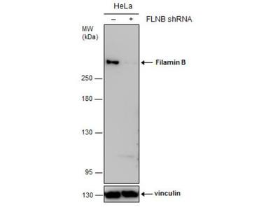 Filamin B Antibody (1372)