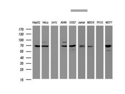 beta-Galactosidase-1 / GLB1 Antibody (OTI1C9)