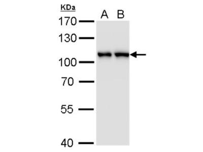 Mouse Monoclonal CSE1L / CAS / Exportin-2 Antibody