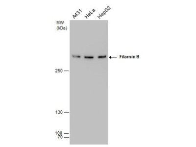 Filamin B Antibody (387)
