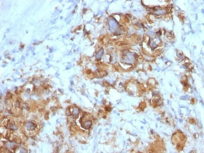 Mouse Monoclonal CA19-9 / Sialyl Lewis A Antibody