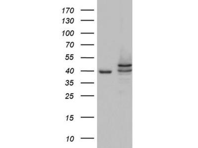 Mouse monoclonal Casein Kinase 1 epsilon Antibody