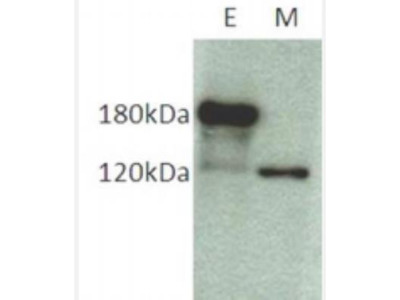Mouse Monoclonal Collagen XVII Antibody