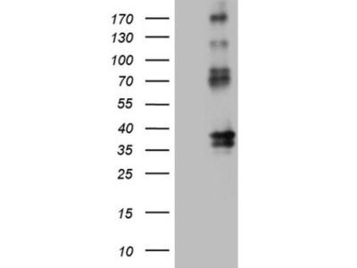 EPCR Antibody (OTI12H5)