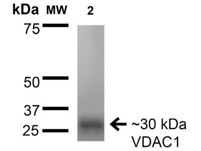 Mouse Monoclonal VDAC1 Antibody