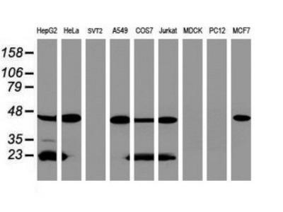 Mouse Monoclonal ACADS Antibody