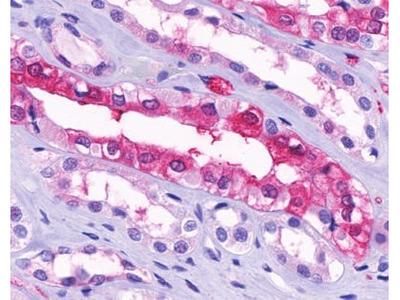 SUCNR1 / GPR91 Antibody