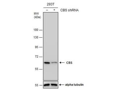 Mouse Monoclonal CBS Antibody