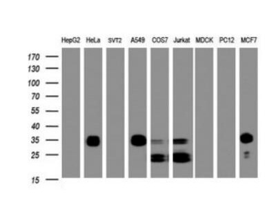 Mouse Monoclonal PPT1 Antibody