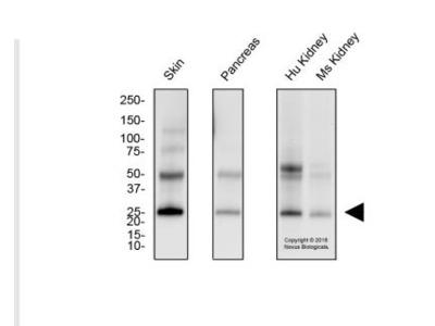 Melan-A /MART-1 Antibody (A103)