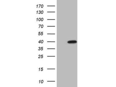 Mouse monoclonal MAGEB3 Antibody