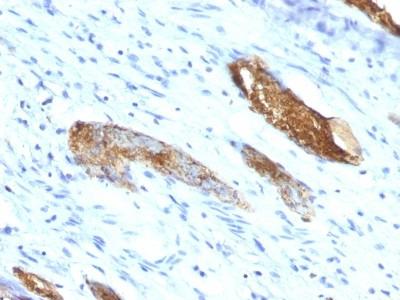 ABO, Blood Group A Antigen Antibody (33C13)
