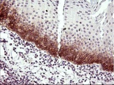 IL6R Antibody (OTI2F4)