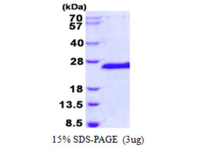 SIAH1 Protein