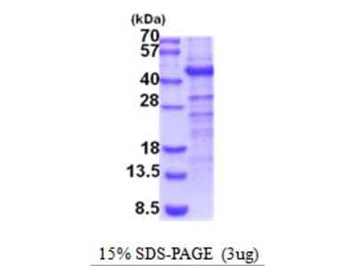 CHST10 Protein