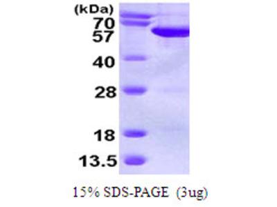 SEPT6 / Septin 6 Protein