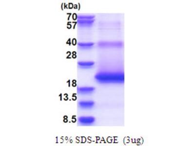 M6PR Protein