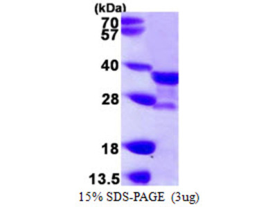 NAT1 / AAC1 Protein