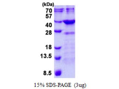 FN3K / Fructosamine-3-Kinase Protein