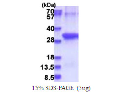 ANTXR2 / CMG2 Protein